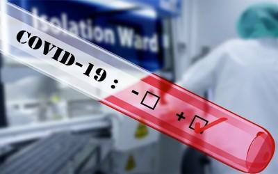 casos confirmados de COVID-19 en 31 condados de Minnesota